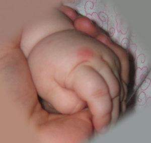 аллергия на укусы клопов у детей