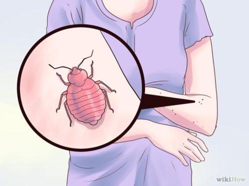 как лечить укусы клопов