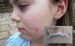 Чем опасно нападение грызунов на человека