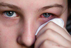 симптомы аллергии на крыс
