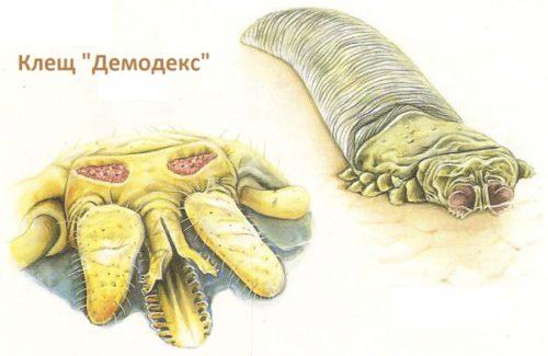 Клещ демодекс у человека