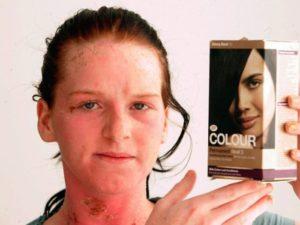 Недостатки лечения педикулеза краской для волос