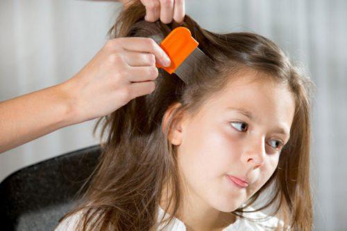 Чем травить вшей и гнид у ребенка