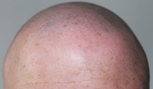 Зараженные волосы сбривают